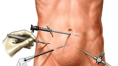 Laparoscopic-Surgery.jpg